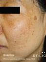 Before Treatment at Original You in Las Vegas