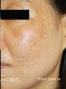 After Treatment at Original You in Las Vegas