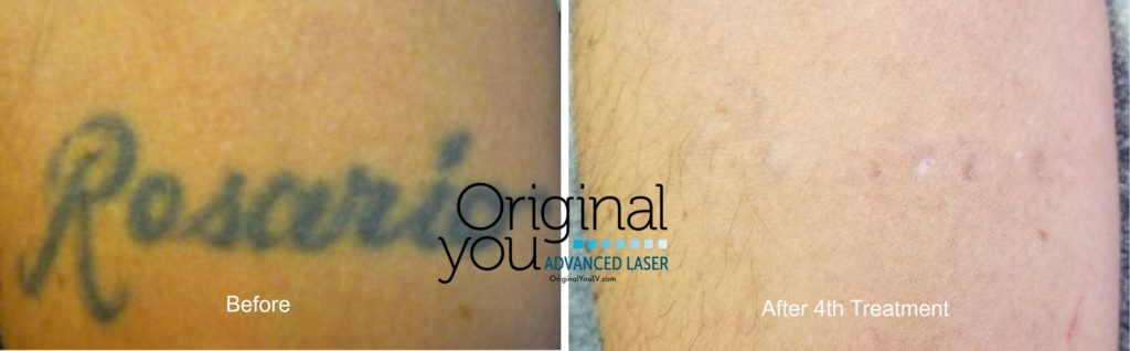 Laser Tattoo Removal Las Vegas | Original You Advanced Laser